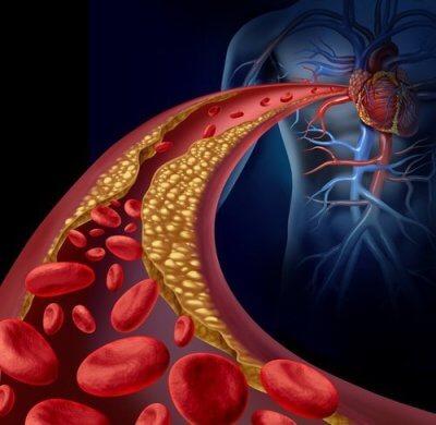 Artéria com aterosclerose