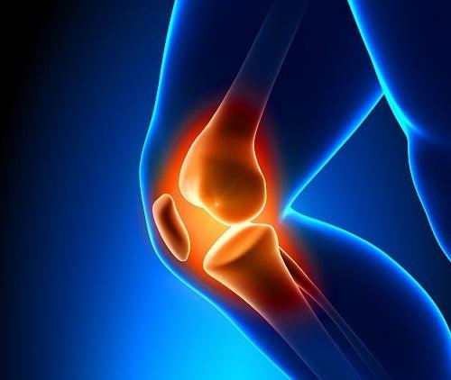 Cuidado com a artrose