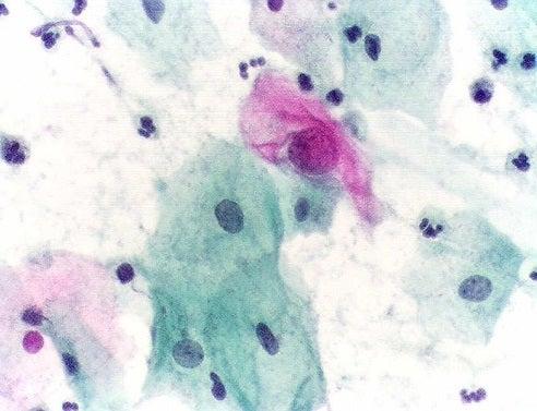 HPV.testepapanicolau