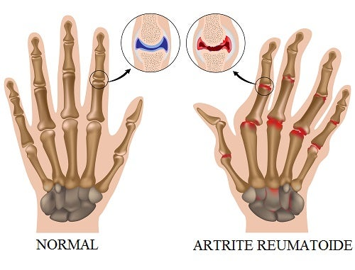 Artrite Reumatoide: como controlar os sintomas