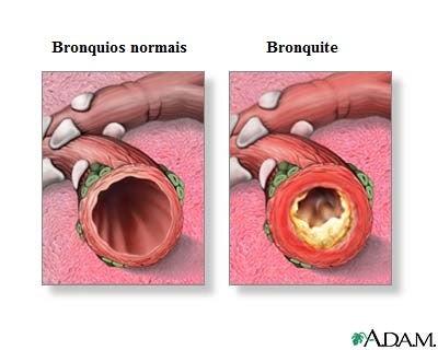 Tratamento natural para a bronquite
