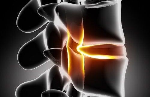 Conheça tratamentos caseiros para dor ciática