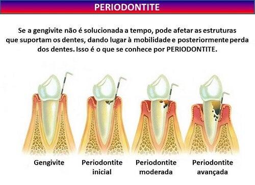Definição de periodontite