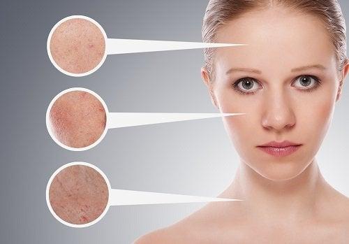 Entenda um pouco mais sobre a acne
