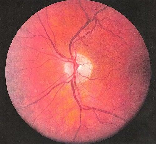 ulcera-olho
