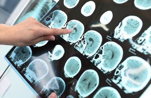O Alzheimer pode ser evitado?