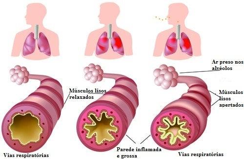 Asma crônica e alergias: o que fazer?