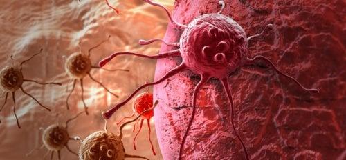 Sintomas de um possível câncer em mulheres