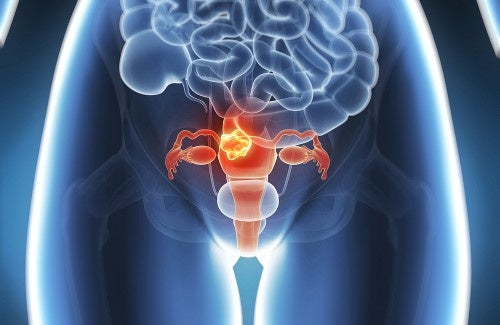 Alivio natural para a endometriose