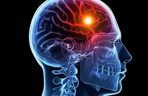 Como prevenir o Acidente Vascular Cerebral?