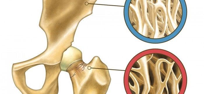 A osteoporose pode ser prevenida naturalmente