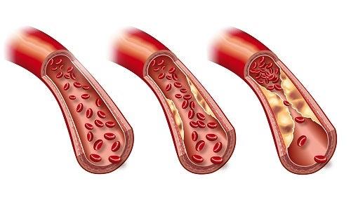 Arteriosclerose: sintomas e tratamento
