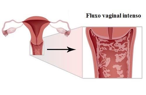 Sintomas, tratamentos e prevenção da vulvovaginite