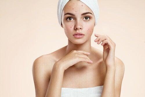 Um dos tratamentos naturais com leite pode ajudar a tratar a acne