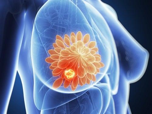 Carne na grelha e o câncer de mama. Um risco maior?