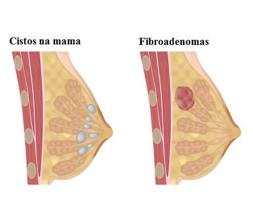 cistos mamários