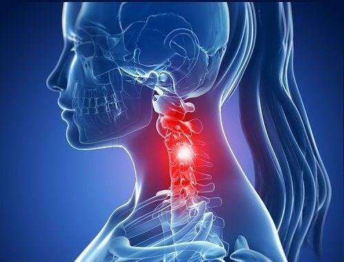 Dor na cervical: causas e prevenção