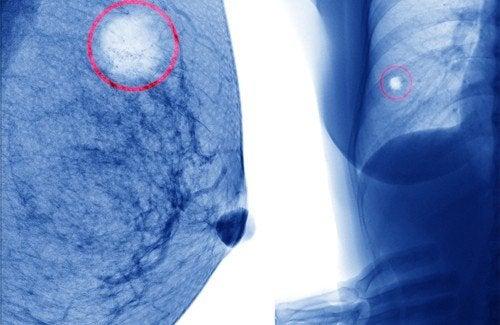 bf7c4a56c Cistos mamários  veja como evitá-los - Melhor com Saúde