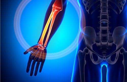 10 melhores alimentos para fortalecer os ossos