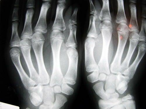 osteoartrites em quem estala os ossos