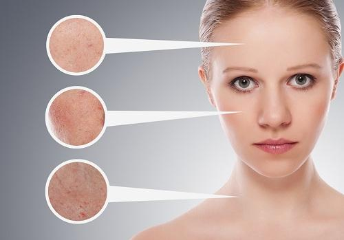O uso da babosa melhora a pele