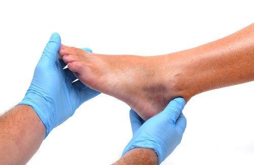E pés doença inchados