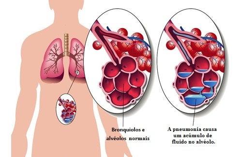 Pneumonia: sintomas e remédios naturais complementares