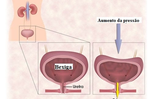 Exercícios para a incontinência urinária da mulher