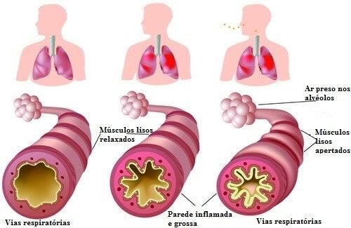 Asma e alergias: remédios naturais que podem nos ajudar