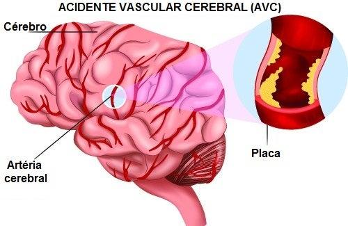 Conhecer os sintomas de um AVC pode salvar vidas