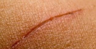 Cicatrizes-500x325
