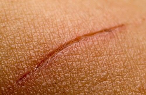 Como atenuar as cicatrizes naturalmente?