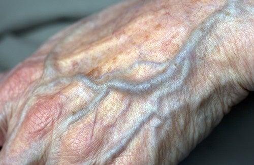 Como melhorar a circulação nas mãos?