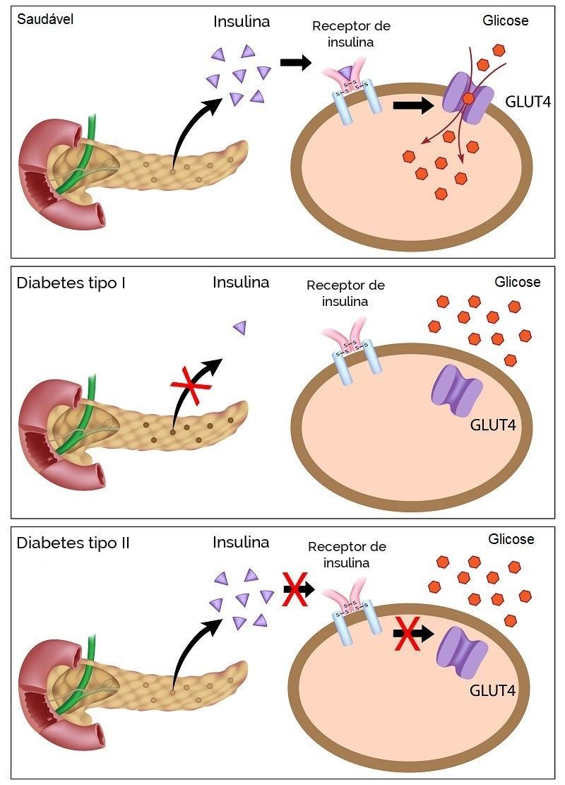 Glicose-diabetes