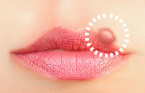 Soluções naturais para o herpes labial