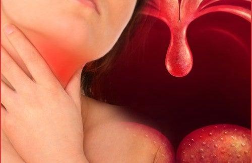 Remédios naturais para a faringite