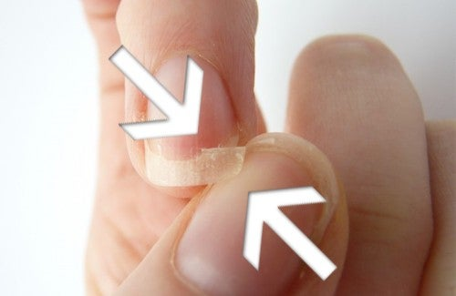 Causas e tratamentos para unhas frágeis