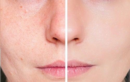 Remédios naturais para cicatrizes de acne