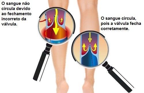 Como melhorar a circulação nos braços e nas pernas?