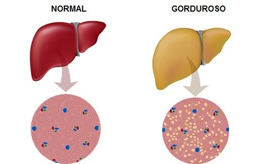 Dicas para combater o fígado gorduroso