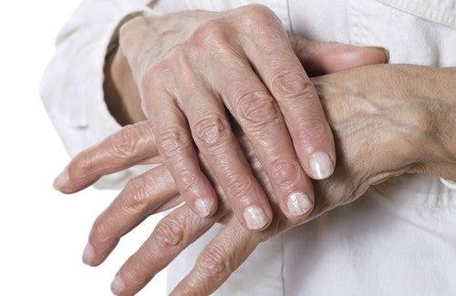 Remédios naturais para rachaduras nas mãos