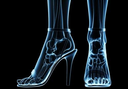 Evite sapatos com ponta fina