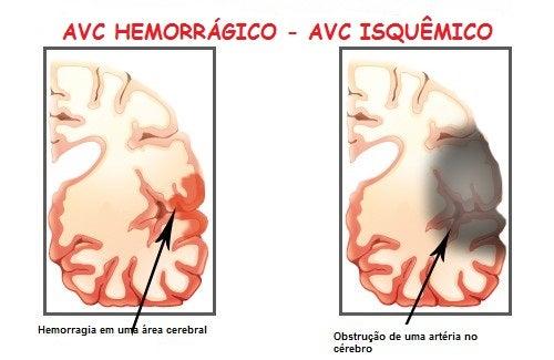 Sintomas de um acidente vascular cerebral (AVC)