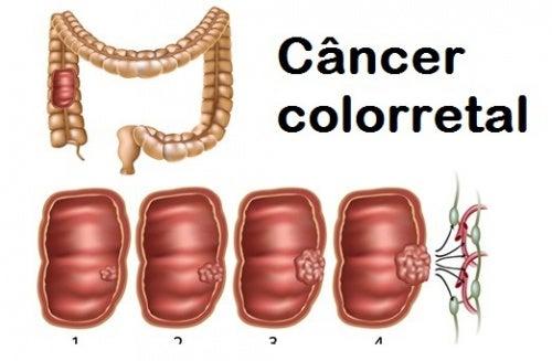 Como conhecer e prevenir o câncer colorretal