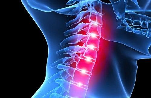 Melhore a postura e alivie a dor cervical