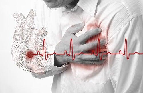 Você sabe reconhecer os sintomas de um infarto?