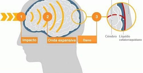 Pancadas leves também podem danificar o cérebro
