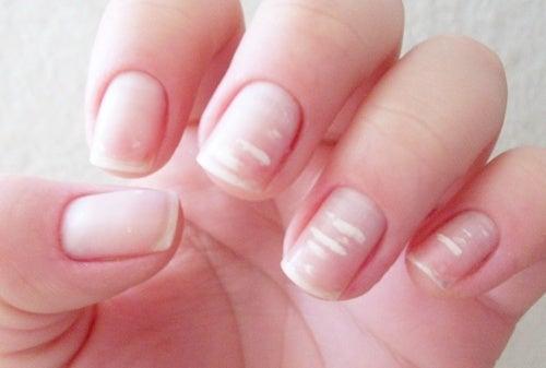 tratamento para as manchas brancas nas unhas