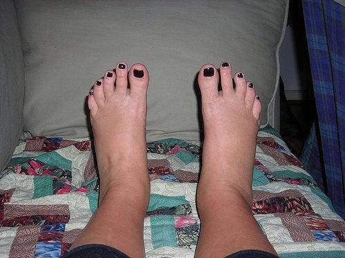 Como evitar o inchaço nos tornozelos?