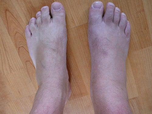 tornozelos2